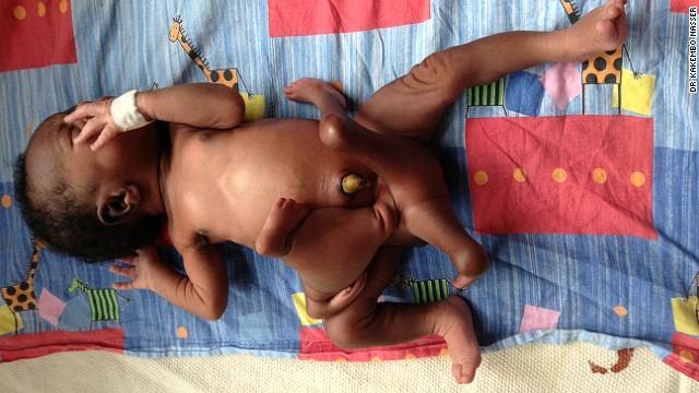 八肢婴儿,美国妈妈生出4只手4条腿儿子 八肢手术成功后成健康宝宝