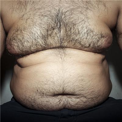单纯性肥胖怎么办?老中医综合减肥六联法效果甚佳的!