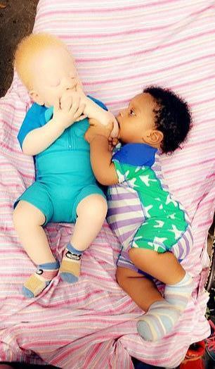 """黑白婴儿,尼日利亚母亲生""""黑白两色""""双胞胎,英国模特公司闻讯忙跑来签约"""