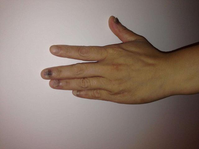 灰指甲图片,灰指甲有哪些症状?如何辨别与调理灰指甲?5个常识需记牢