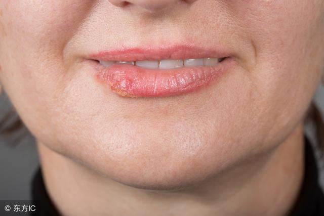 嘴角长疱疹怎么办,「唇疱疹」又痛又痒怎么办?使用「6种天然材料」击退病毒