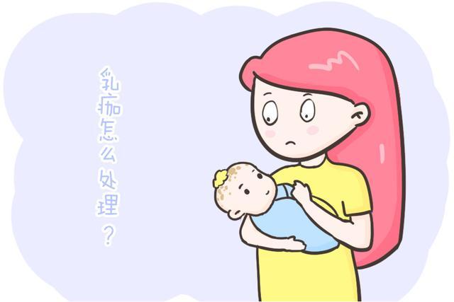 婴儿头上,怎么处理宝宝出生后头部的乳痂?一篇帮你答疑解惑,父母快收藏吧