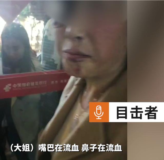 四川女子在ATM机取钱时,遭陌生男子殴打抢夺,警方:已行拘 全球新闻风头榜 第1张