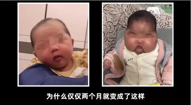 婴儿治疗湿疹,治疗婴儿湿疹四要三不要,激素膏正确使用,不用担心大头娃娃