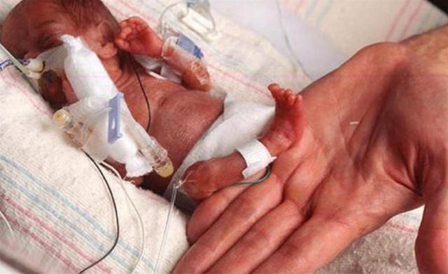 """拇指婴儿,当初,那位打破吉尼斯世界纪录的""""拇指宝宝"""",如今现状如何?"""