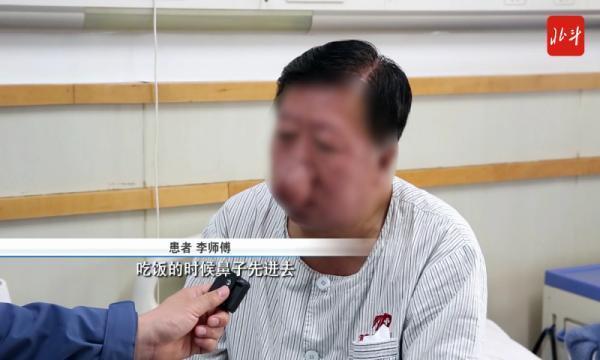 """铁岭一男子40年喝了上万斤酒,竟然长出""""象鼻子""""!"""""""