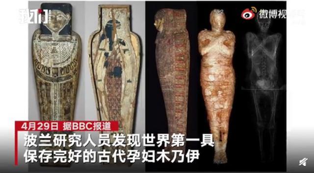 芬兰发觉2000年前孕妈妈埃及木乃伊:肚子里胎宝宝扫描仪清楚