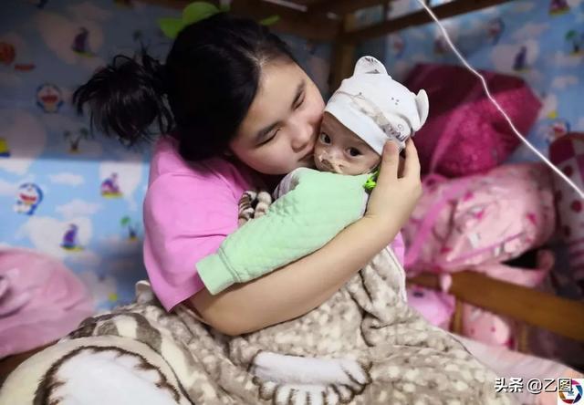 小婴儿逃出系列1,6个月大男婴只有7斤,在出租房吸氧续命,那双大眼让人无法直视
