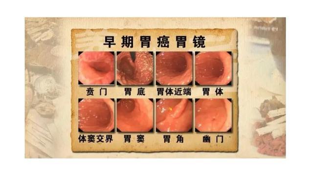 """39岁女子胃癌一年时间""""皮包骨""""为何让人起敬?日本为何治愈率高"""