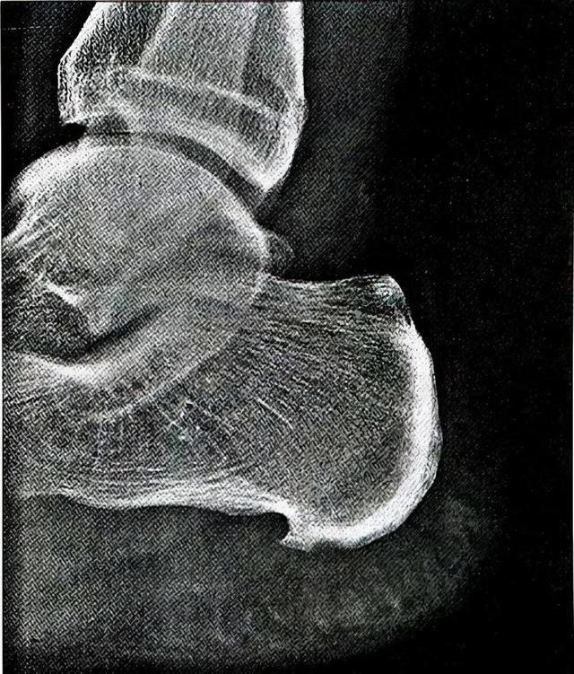 """秋天""""脚后跟疼""""?医生建议:常见原因有3种,别总忍着,能治"""