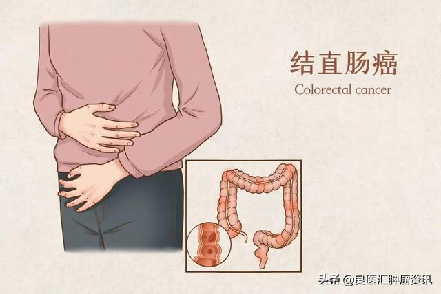 为什么我国的结直肠癌死亡率比欧美和日韩高?差别在这里