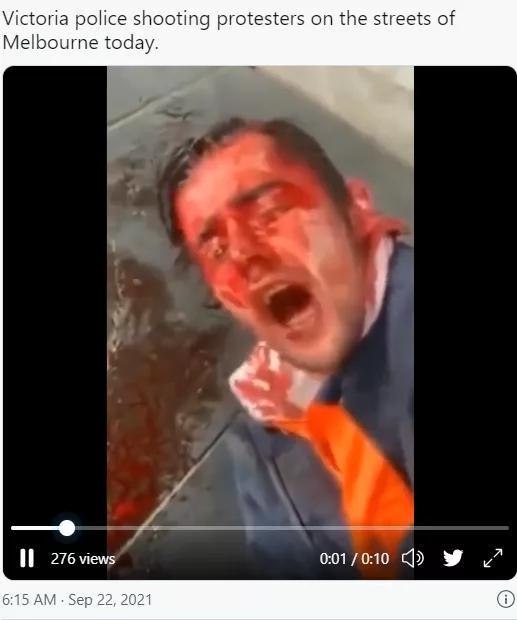 墨尔本反疫苗抗议暴力升级 警察受伤 记者遭殴打 枪声狂响
